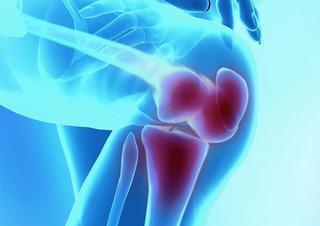koleno, bolest, klouby