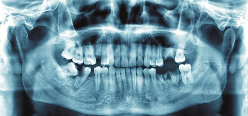 *stomatologie, zubař, rentgen