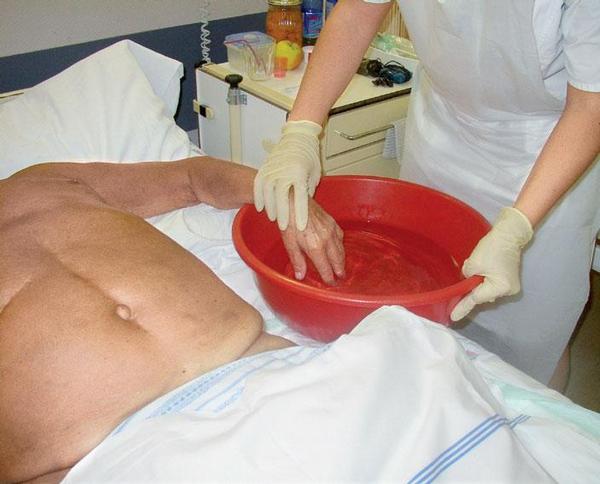 Bazální stimulace u hematoonkologicky nemocného