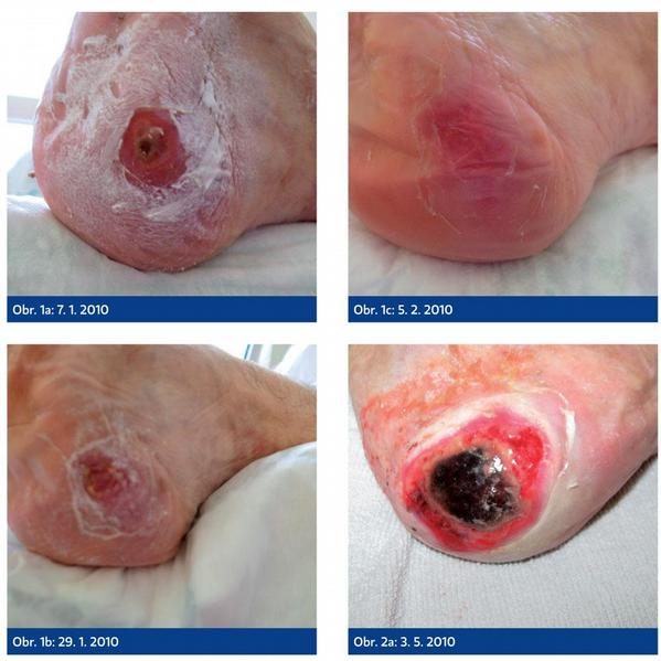 Paliativní a hospicová péče o kožní defekty