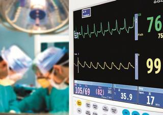 operace, chirurgové, monitor