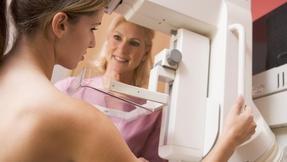 *mamografie, rakovina prsu, onkologie