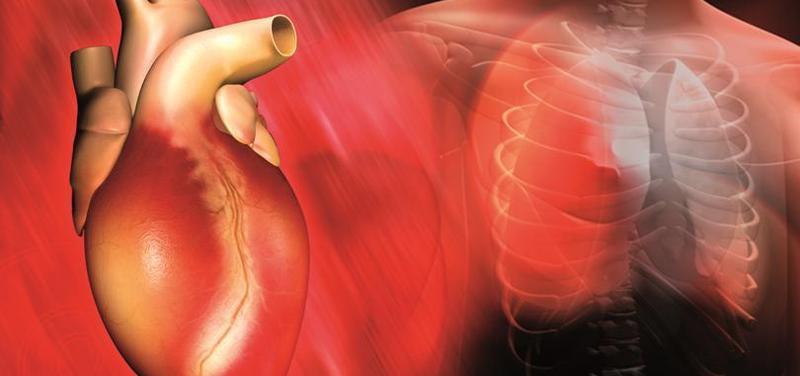 srdce, kardiologie