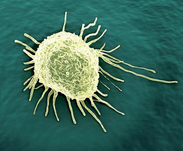 Onkologie dnes