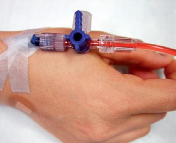 Ilustrační foto; infuze, chemoterapie, ruka