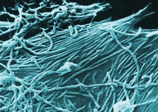 Ebola, virus,Ebola virus