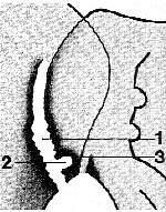 Bolesti dolních zad z pohledu revmatologa