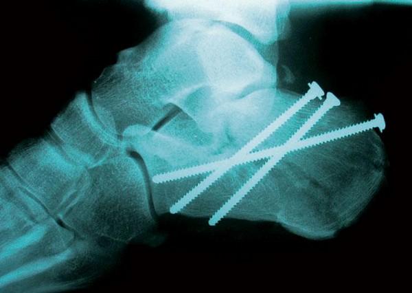 Symptomatologie a ošetřování zlomenin patní kosti