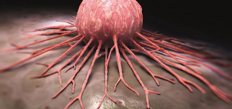 *rakovina, onkologie
