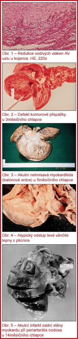 myocardia