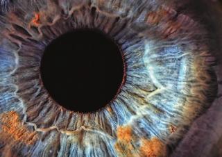 oko, oftalmologie