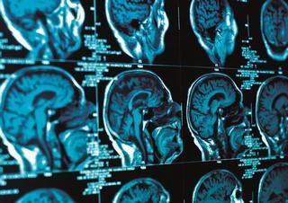rtg, rengen, hlava, neurologie, mozek