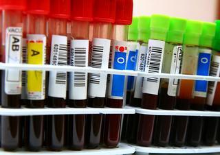 krev, laboratoř, výzkum
