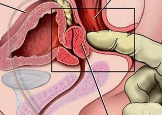 prostata, urologie,