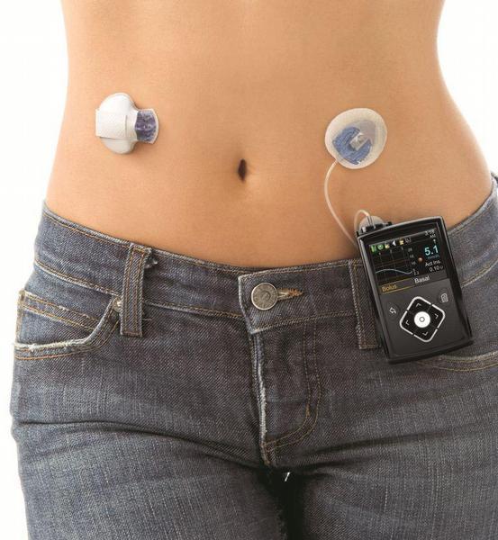 Inzulinová pumpa MiniMed