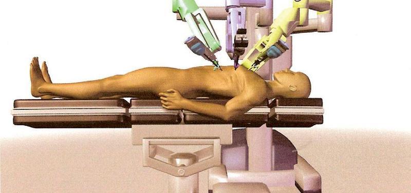 Obr. 9 – Poloha operační konzole při odběru LIMA a provádění TECAB (LIMA – levá vnitřní prsní tepna, TECAB – kompletně endoskopicky provedený aortokoronární bypass)