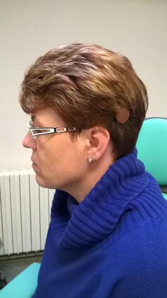 první aktivní středoušní implantát v ČR