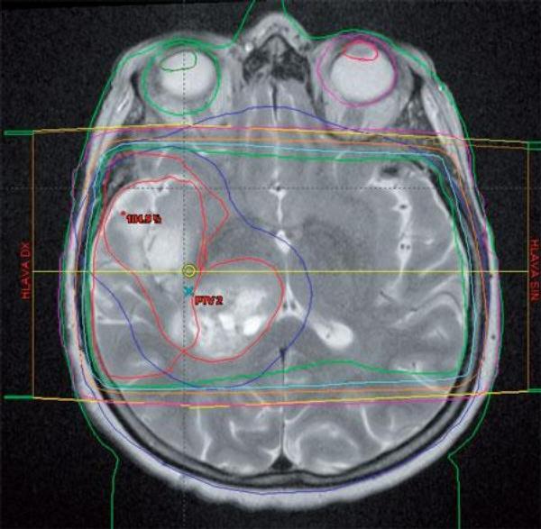 Obr. 1 – Fúze CT a MR obrazů při plánování radioterapie oblasti lůžka glioblastomu, dvou ložisek, se zakreslenými cílovými objemy, a izodózní plán léčby zářením (Klinika radiační onkologie, MOÚ, Brno)