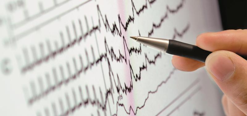 *kardiologie, EKG, srdce