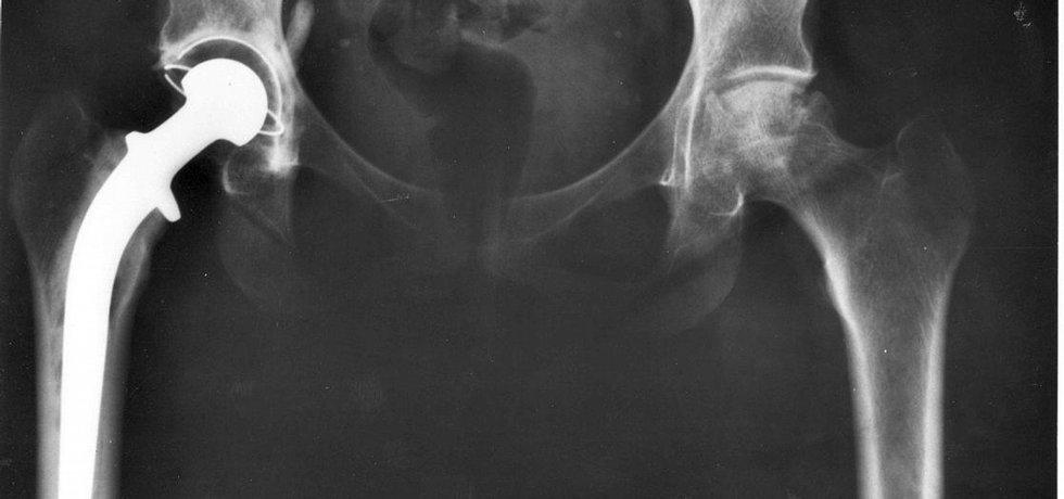 Rentgenový snímek náhrady kyčelního kloubu