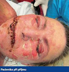 Lyellův syndrom neboli toxická epidermální nekrolýza