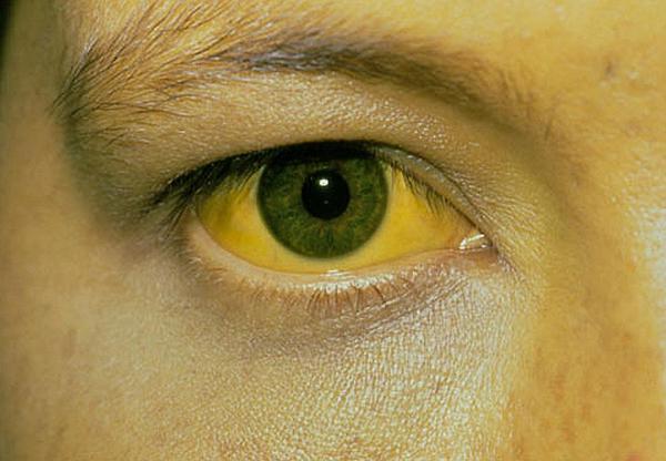 Icterus, žloutenka, hepatitis, hepatitida A, hepatitida,