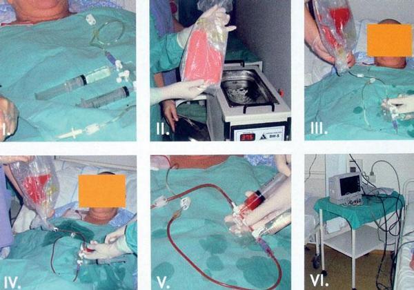 Transplantace krvetvorných kmenových buněk