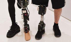 Počítačem řízená protéza