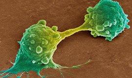 rakovinné buňky, ilustrační foto