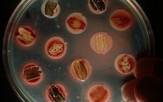 Výzkum nových účinných antibiotik je pomalý.