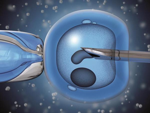 IVF, umělé oplodnění
