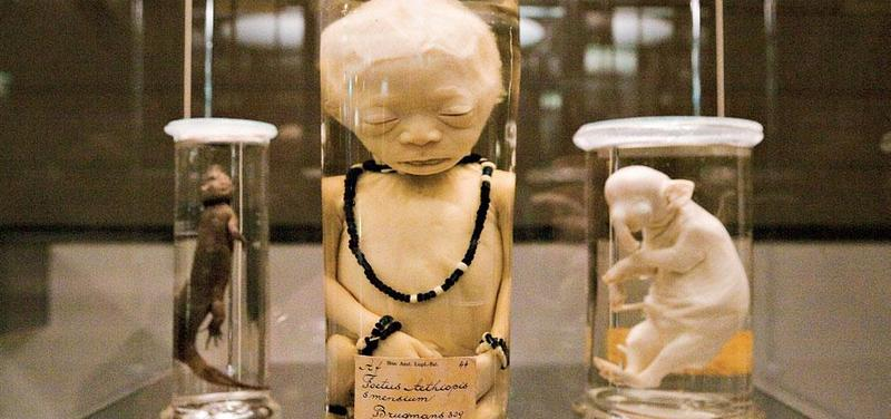 Exponáty z kuriózní sbírky prof. Brugmanse. Uprostřed lidský plod ozdobený korálky.