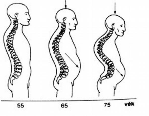 Osteoporóza z pohledu fyzioterapeuta