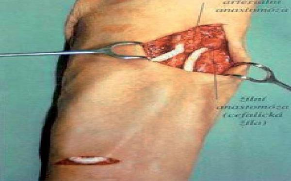 Umělá cévní náhrada – graft