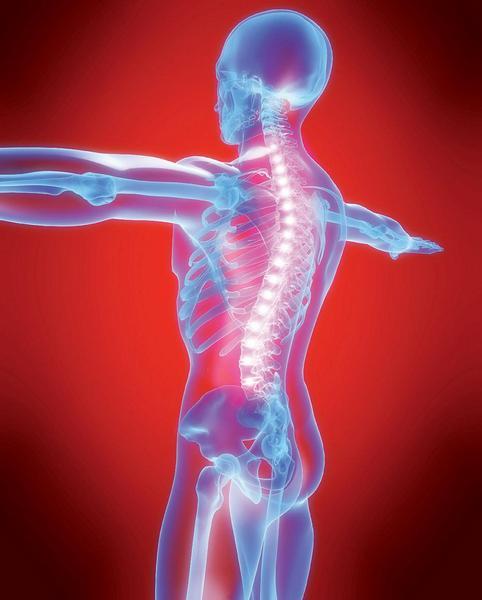 FBSS – když záda bolí i po operaci