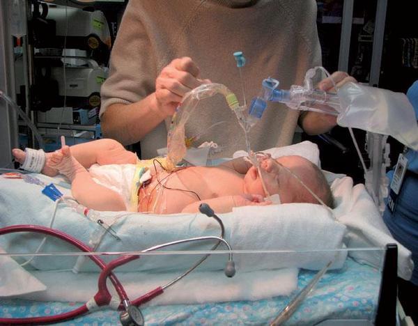 Kvalita života dítěte s četnými VVV