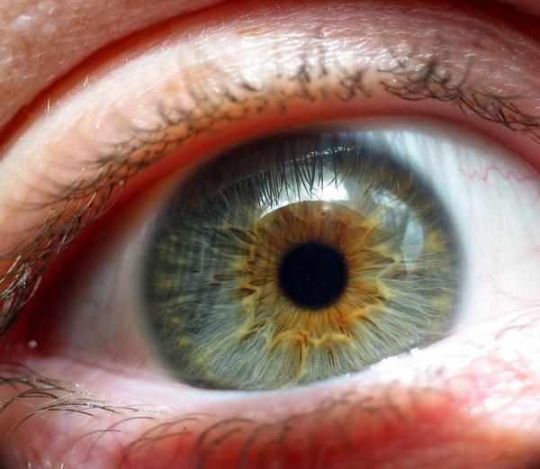 iris, oko, oční, ophtalmologie, duhovka