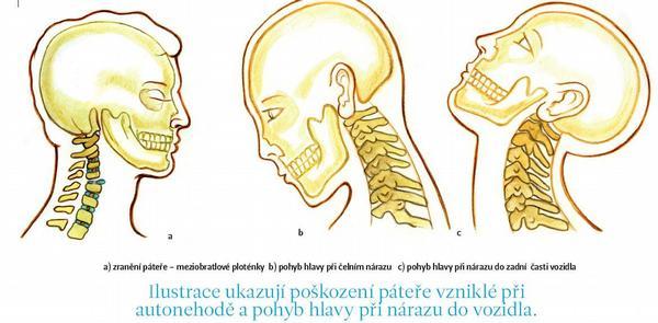 Ilustrace ukazují poškození páteře vzniklé při autonehodě a pohyb hlavy při nárazu do vozidla.