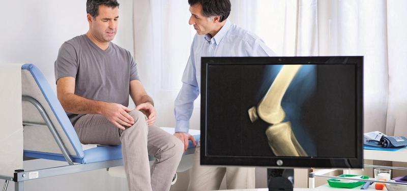 *ortopedie, revmatologie, lékař, pacient, kloub, koleno