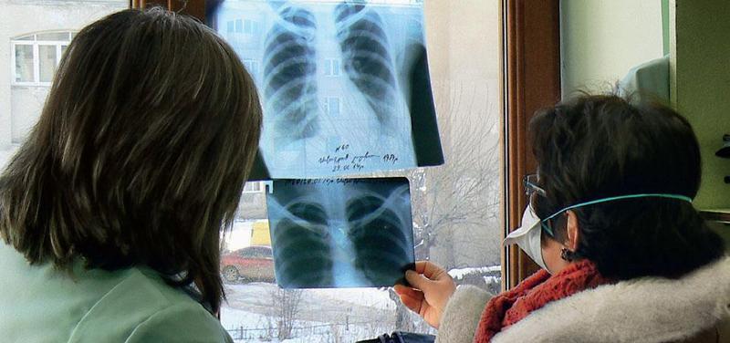 TBC: Pokroky i další výzvy