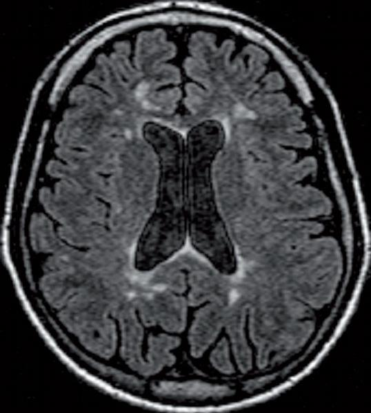 Roztroušená skleróza, neuromyelitis optica a antifosfolipidový syndrom z diferenciálnědiagnostického pohledu neurologa