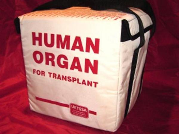transplantace, dárce orgánů, orgán