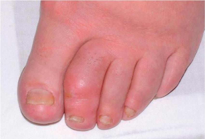 Výsledek obrázku pro psoriatická artritida