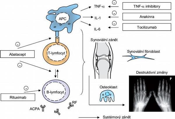 Biologická léčba revmatoidní artritidy