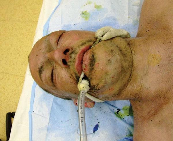 Ošetřovatelská kazuistika u pacienta s termickým poraněním