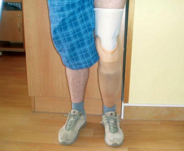 Rehabilitace u klienta po amputaci dolních končetin