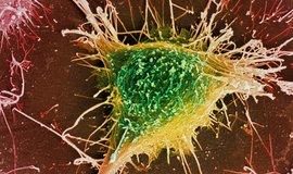 Buňka geneticky upravená k produkci amyloidu, jež se užívá ve výzkumu Alzheimerovy choroby