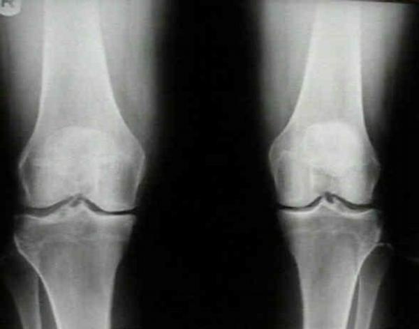 koleno, kolena, rtg, rentgen